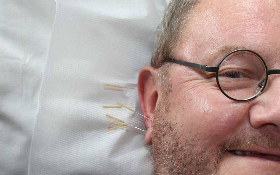 O que é Auriculoterapia e quais os benefícios?